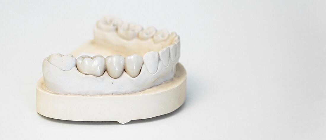 Zahnarzt Heisingen Bruecken