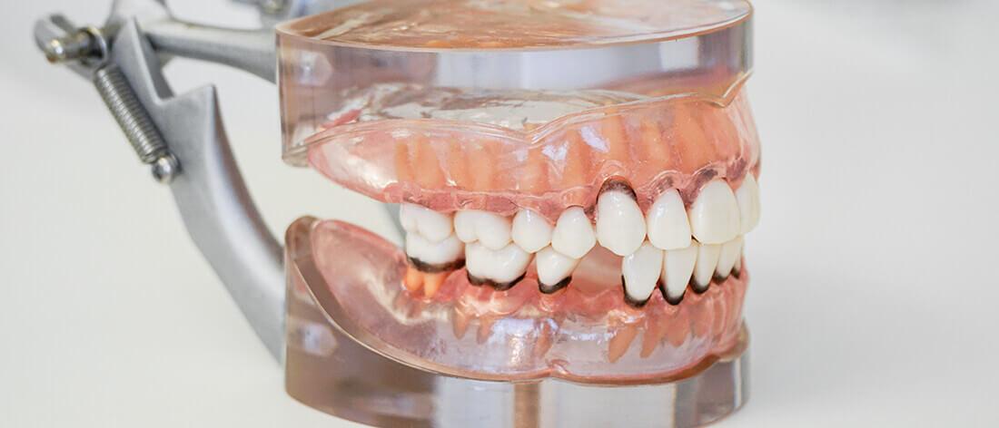 Zahnarzt Heisingen Parodontologie