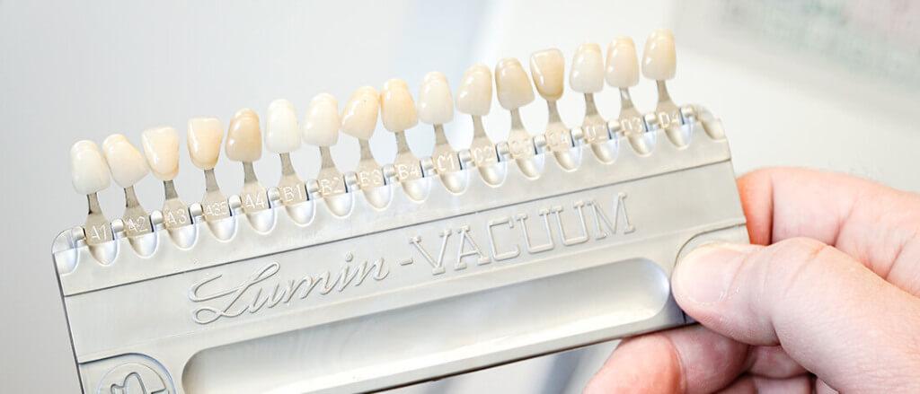Zahnarzt Heisingen Bleaching Zahn Weiss