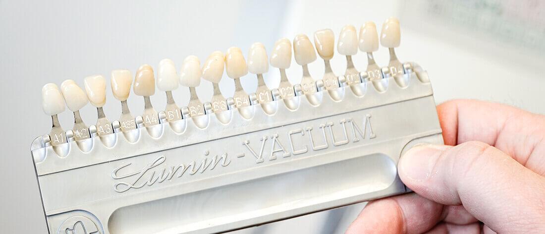 Zahnarzt Heisingen Kronen