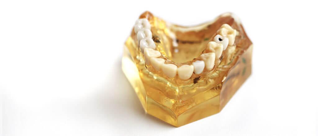 Implantate Zahn Heisingen Zahnarzt