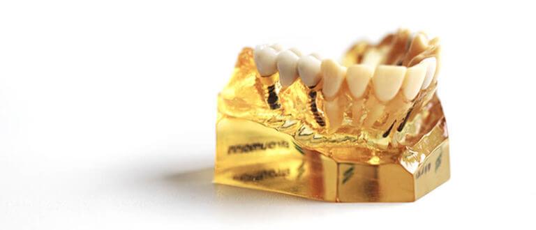 Zahnarzt Heisingen Implantate