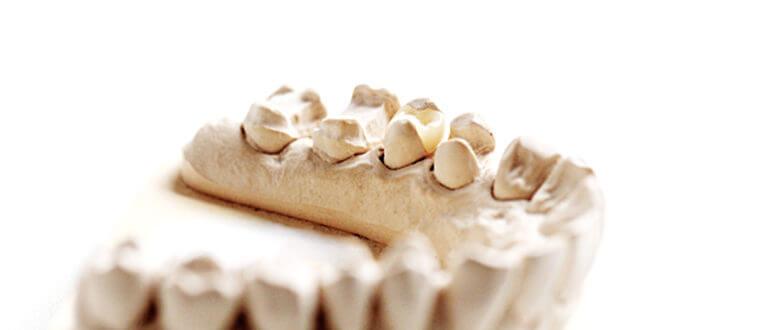 Zahnarzt Heisingen Inlays