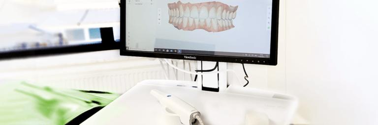 Zahnarzt Heisingen Intraoraler Scan