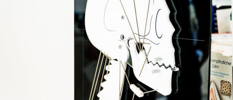 Kiefergelenkstherapie Schienentherapie Zahnarzt Heisingen