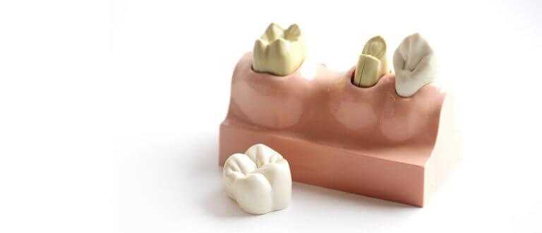 Heisingen Zahnarzt Zahn Krone