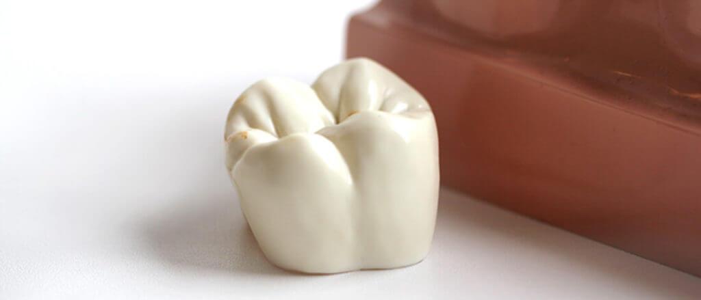 Zahnarzt Heisingen Krone Zahn