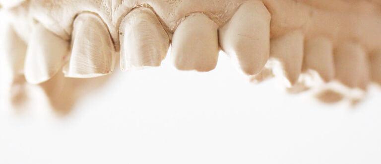 Zahnarzt Heisingen Veneers
